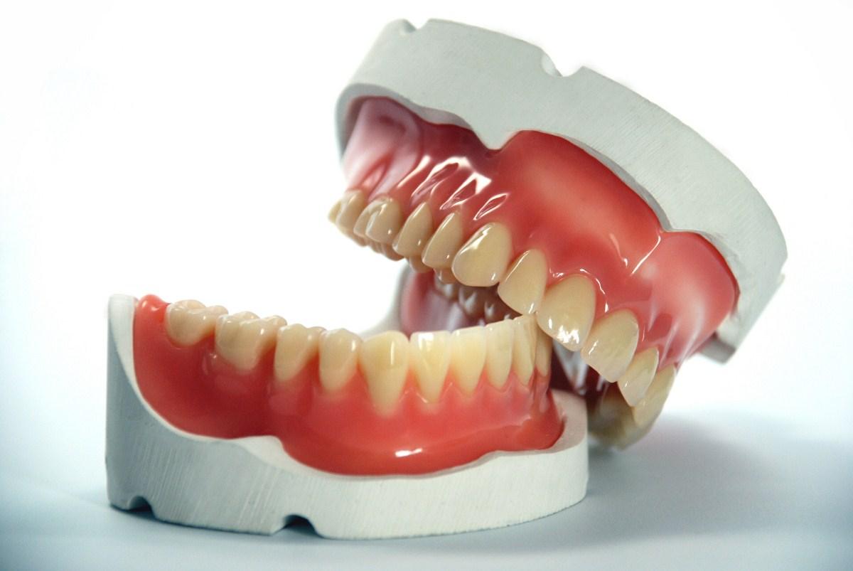 Fotos de proteses fixas dentarias 21